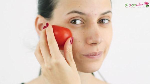 درمان اکنه و جوش با سرکه سیب