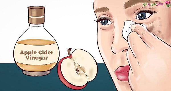 سرکه سیب و لکه های پوستی