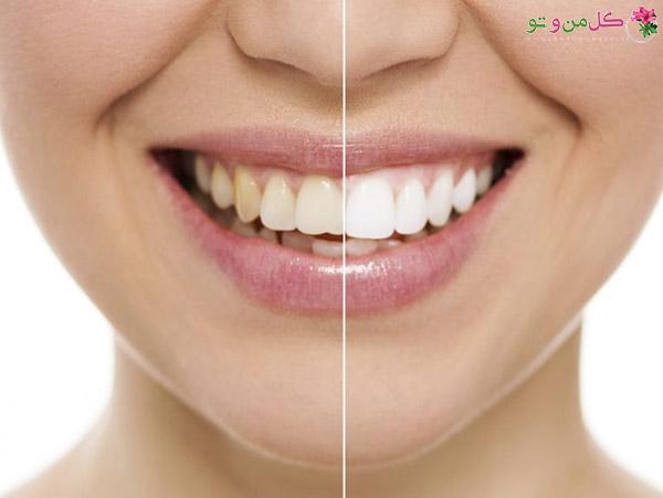 سرکه سفید و سفید کردن دندان ها
