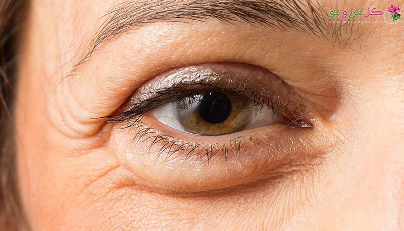 10 روش سریع از بین بردن پف چشم