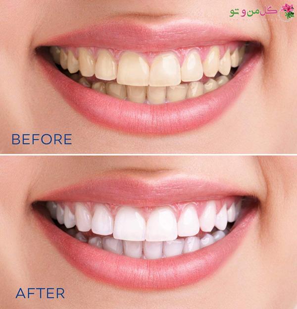 جرم گیری بهتر است یا بلیچینگ دندان