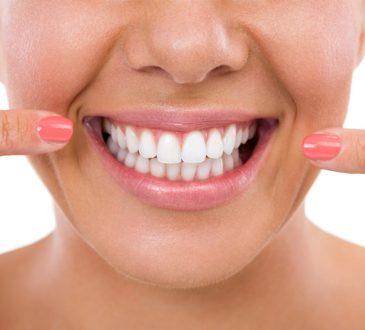 بلیچینگ دندان (سفید کردن دندان ها)