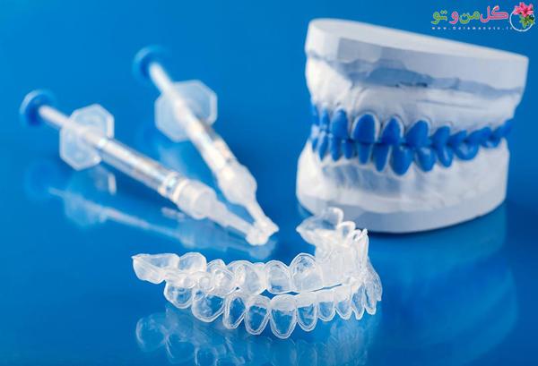 نکاتی مهم درباره بلیچینگ دندان