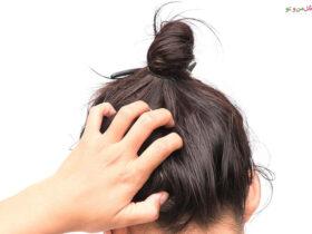 درمان خارش پوست سر با 6 روش