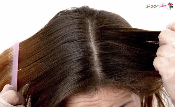 چند ماسک موی طبیعی برای درمان خارش موی سر: