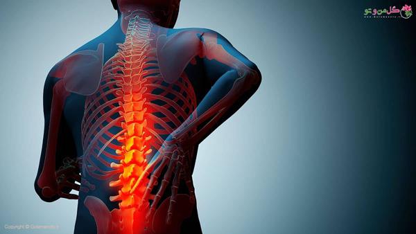 نقش تغذیه در درمان و پیشگیری از پوکی استخوان