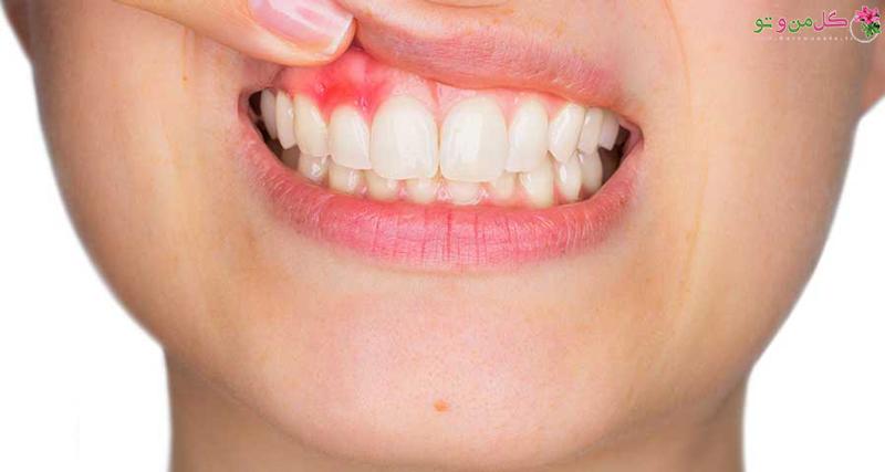 آبسه دندان چطور بروز می کند؟