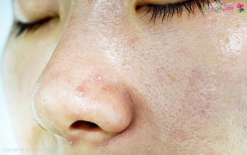 close up of a womans oily skin نبایدهایی برای پوست چرب که باید بدانید