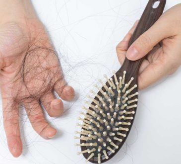 رابطه ریزش مو و مشکلات هورمونی در زنان