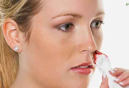 آیا خون دماغ شدن در بارداری خطرناک هست؟