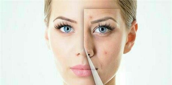 حفظ سلامت پوست