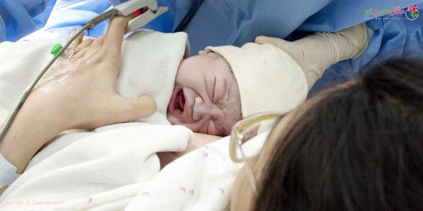 بغل کردن بچه پس از زایمان