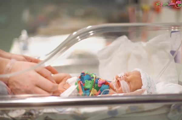 تاثیر زایمان زودرس در نوزاد - مشکلات تنفسی