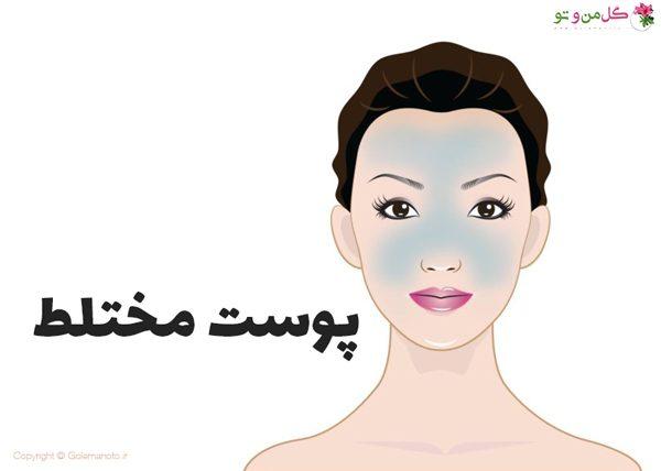 تشخیص نوع پوست - پوست مختلط