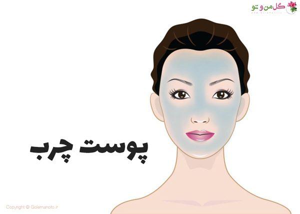تشخیص نوع پوست - پوست چرب