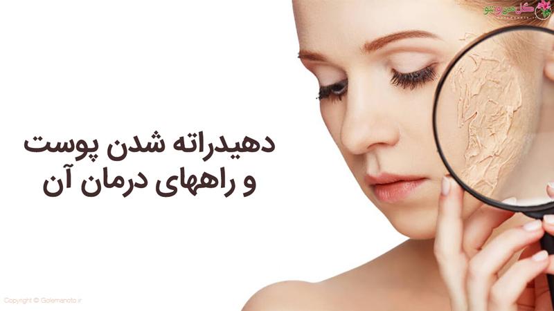 شخیص پوست دهیدراته و راهکارهایی برای درمان آن