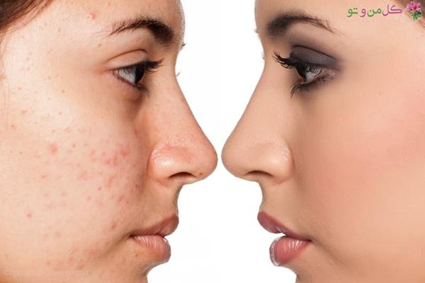 علت بوجود آمدن جوشهای زیر پوستی