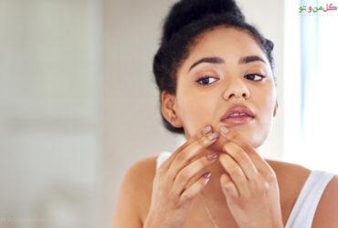 علت جوش زیر پوستی و طریقه درمان خانگی آن