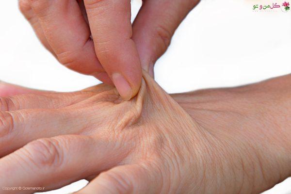 روش تشخیص پوست دهیدراته
