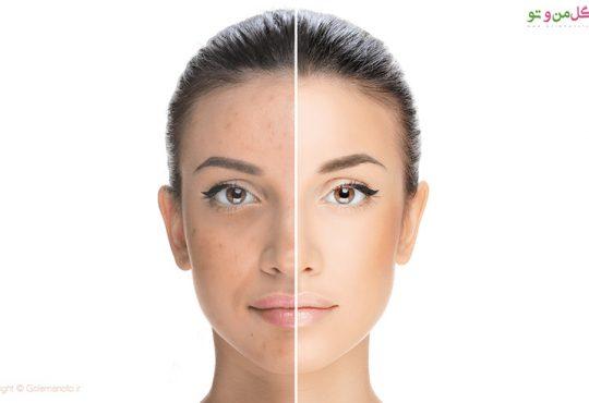 درمان جای جوش و پاکسازی پوست خانگی