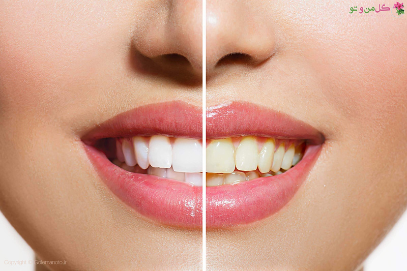 علت زردی دندان و از بین بردن زردی دندان