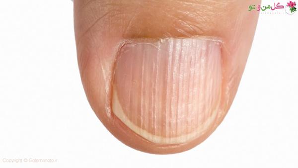 علت خطوط روی ناخن به شکل عمودی