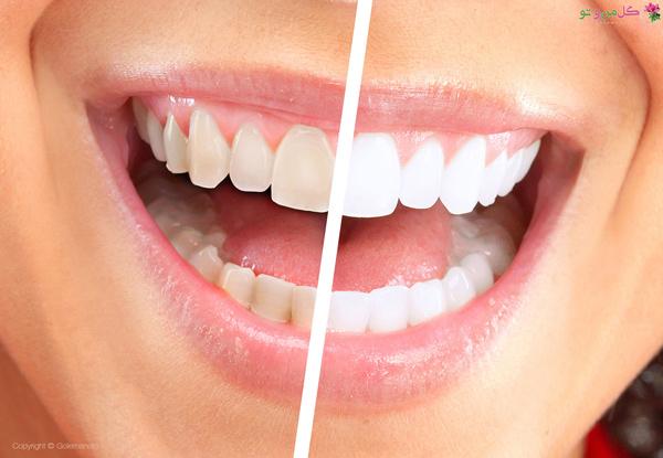 دلایل زردی دندان