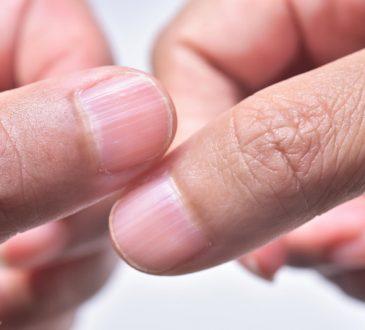 علت خطوط روی ناخن