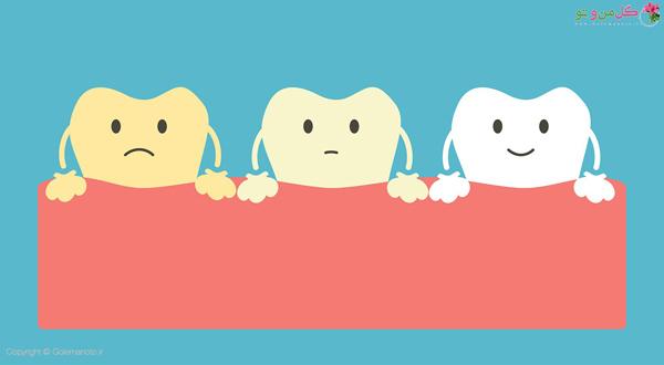 مصرف داروها و شیمی درمانی یکی از عوامل زردی دندان