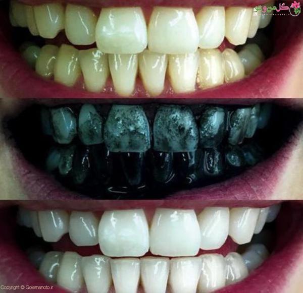 سفید کردن دندان با پودر زغال