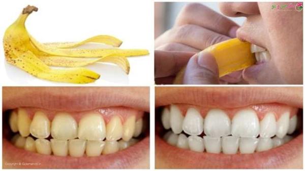 سفیدکردن دندان ها با پوست موز