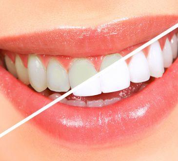 روش سفید کردن دندان ها در خانه