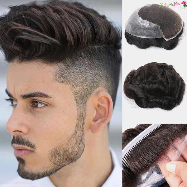 انواع پروتز مو