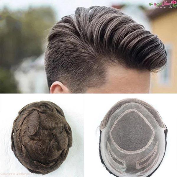 تفاوت پروتز مو با کاشت مو