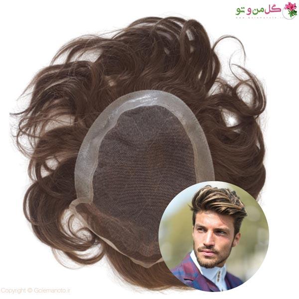 معایب پروتز مو را بدانید